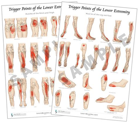 Trigger Point Poster – Lower Extremity – Terra Rosa Online